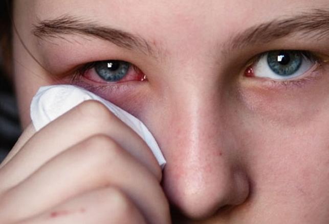 Как убрать синяки под глазами в домашних